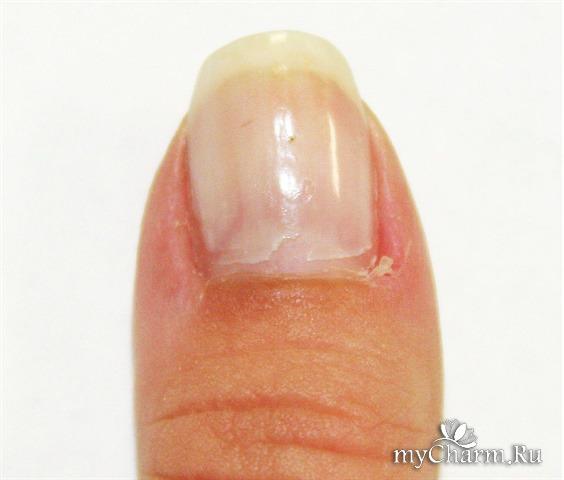 Лечение папилломы на половых губах дома
