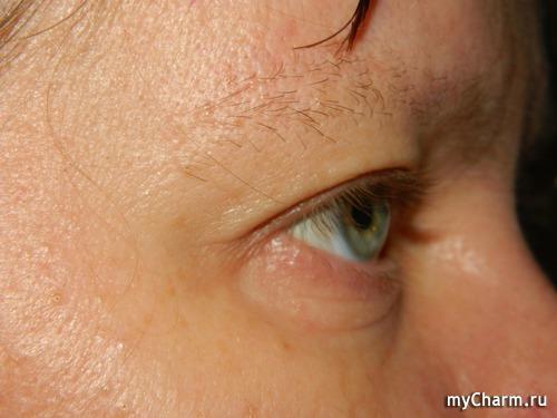 Быстро снять покраснение с глаза в домашних условиях