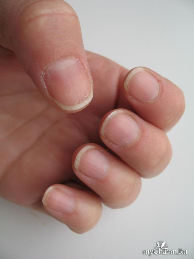 Ногти рифленые причина фото