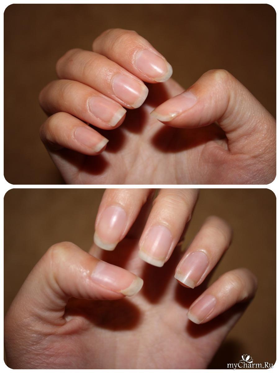 От чего слоятся ногти и что делать фото