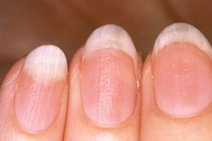 Расслоение ногтей. Причины, лечение.
