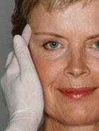 Что может пластический хирург: фото «До» и «После»