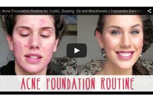 Волшебная сила макияжа: 5 видео-уроков, как закрасить акне
