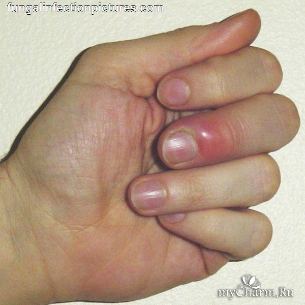 Лечим ногти