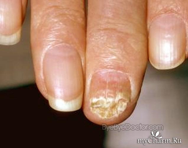 Грибок на руках под ногтями чем лечить