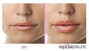 Контурная пластика губ — ваши губки этого достойны!