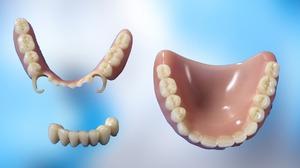 Зубные протезы, которые можно снять