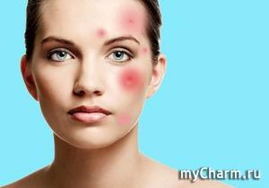 Восстановление кожи, склонной к высыпаниям