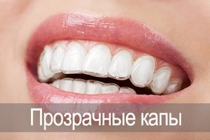 Эстетическая стоматология: выравнивание зубов капами