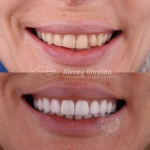 Современная стоматология: имплантация зубной эмали методом Icon