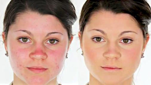 Как правильно наносить макияж с проблемной кожей